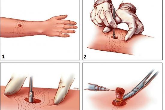 Удаление опухоли кожи 0 Турция