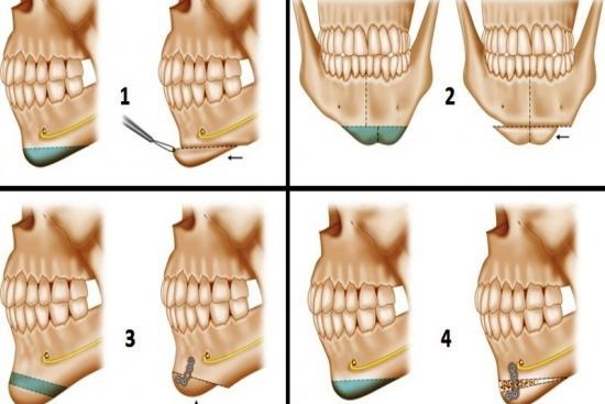Mentoplasty,cost,chin surgery,turkey,sliding genioplasty,procedure,clinic, doctor