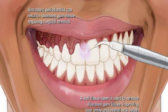 Gingivectomie 0 Turquie