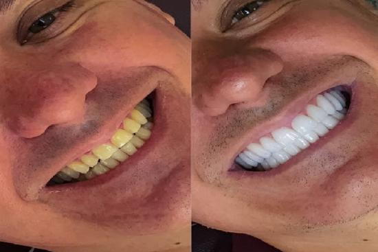 الصور قبل / بعد