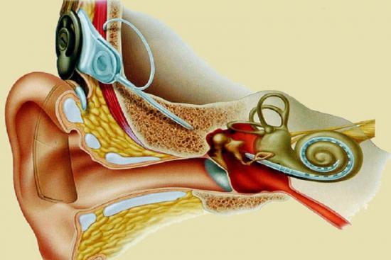 Implant Cochléaire 3 Turquie
