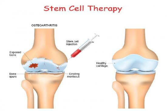 Stem cells injection 0 Turkey