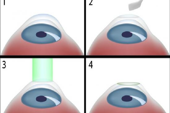 Kératectomie photoréfractive 1 Turquie