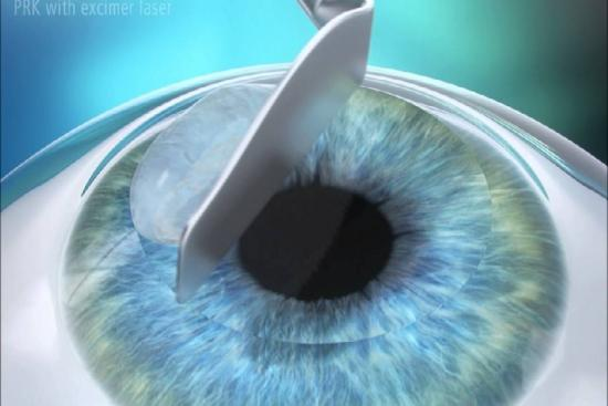Photorefractive keratectomy 0 Turkey