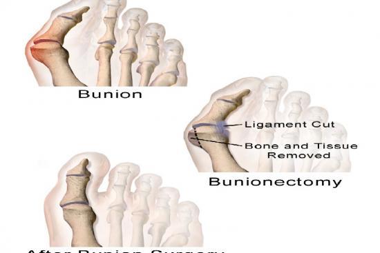 Bunion Surgery  1 Turkey