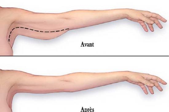 arm lift,clinic,hospital,prices,recovery,brachioplasty,non surgical arm lift,non surgical,arm liposuction,liposuction,turkey,istanbul,cost,doctor