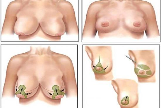 Breast lift 1 Turkey