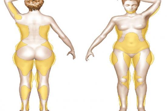 Liposuction, turkey, antalya, izmir, istanbul, clinics, doctors, price, reviews, VASER