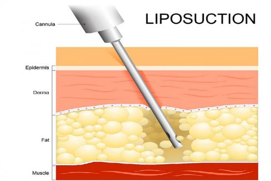 Laser Liposuction 1 Turkey
