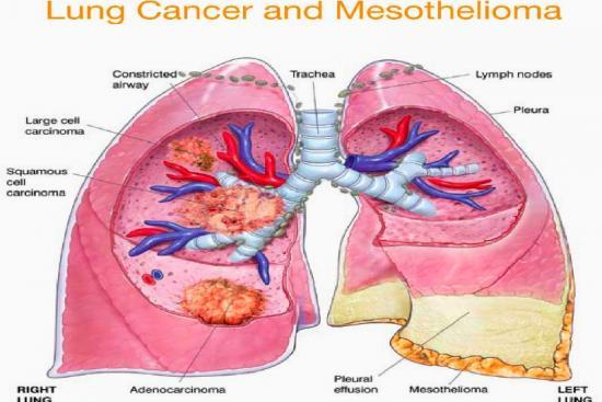 Лечение мезотелиомы плевры  3 Турция