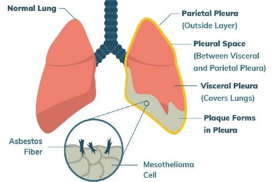 Лечение мезотелиомы плевры  1 Турция