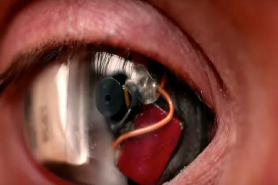 bionic eye cost,bionic eye,cost,hospital,clinic,turkey,istanbul,doctor,ophthalmologist