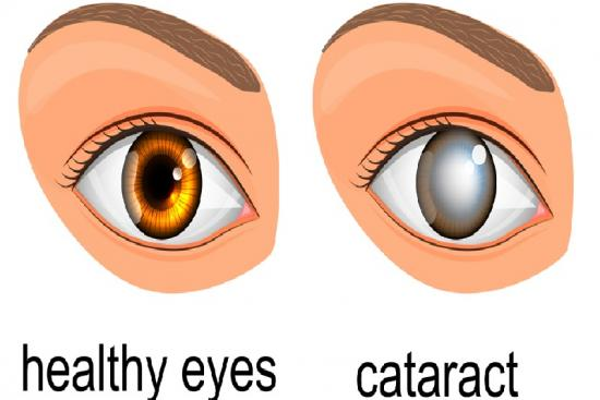 Istanbul, cost, Recovery, cataract surgery procedure, procedure, complications, ophthalmologist, hospital, clinic, turkey