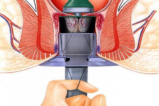 Opération des hémorroïdes 1 Turquie