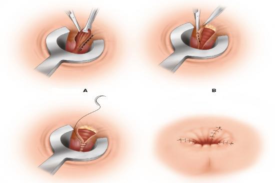 Opération des hémorroïdes 3 Turquie