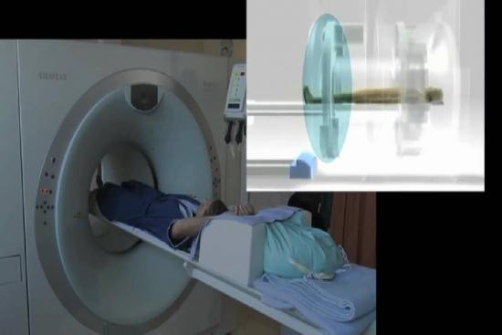 Pet-Scan (Pet-CT) 3 Turkey
