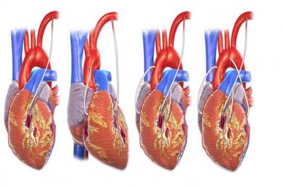 Coronary Artery Bypass Grafting 1 Turkey