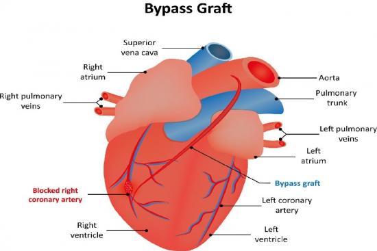 Coronary Artery Bypass Grafting 0 Turkey