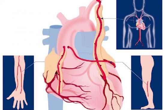 Coronary Artery Bypass Grafting 2 Turkey