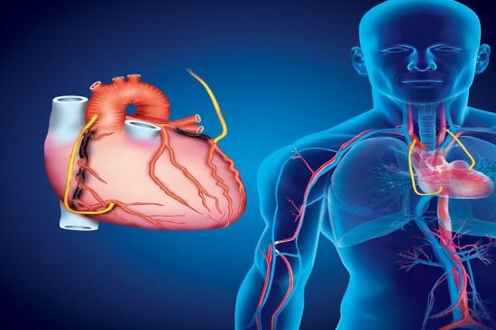 Coronary Artery Bypass Grafting 3 Turkey