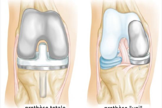Knee prosthesis 3 Turkey