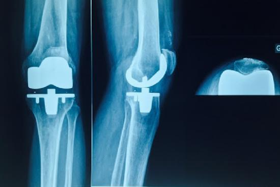 Knee prosthesis 1 Turkey