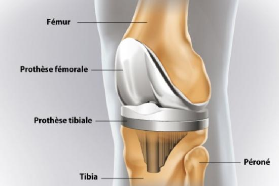 Knee prosthesis 2 Turkey