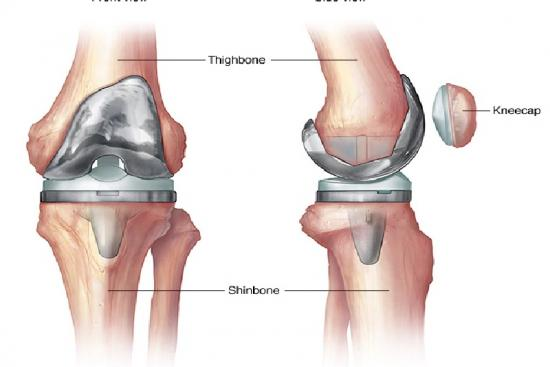 Knee prosthesis 5 Turkey