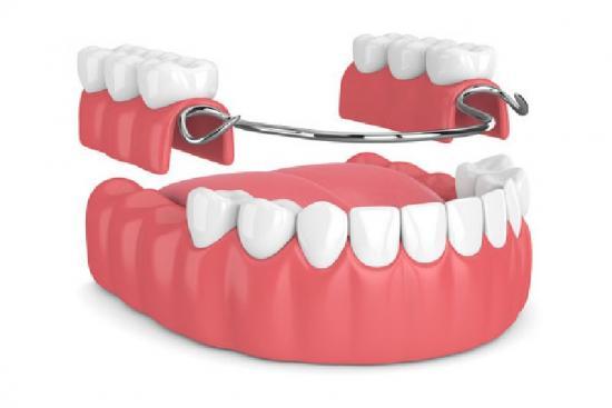 Зубной протез 3 Турция