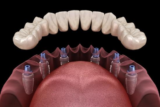 Зубной протез 2 Турция