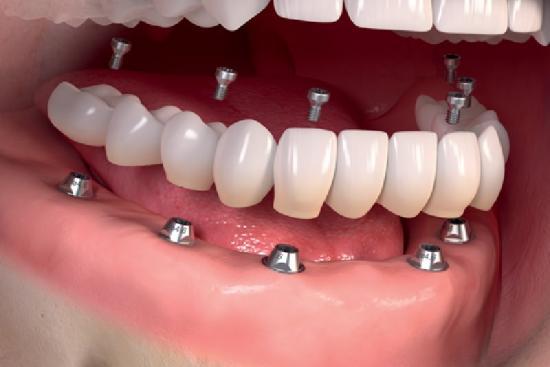 Зубной протез 1 Турция