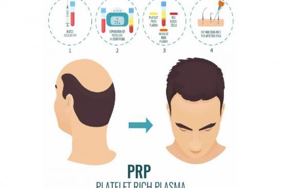 Плазмотерапия волос 0 Турция