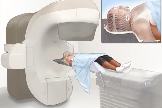 العلاج الإشعاعي  2 تركيا