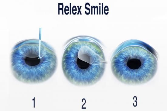 ReLEX SMILE,cost,review,turkey,istanbul,clinic,ophthalmologist