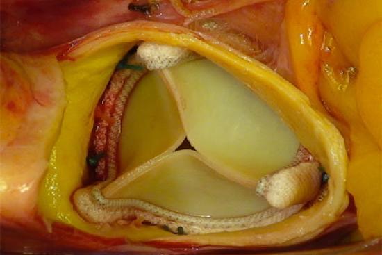 Remplacement des Valves Cardiaques 3 Turquie