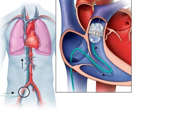 Remplacement des Valves Cardiaques 0 Turquie