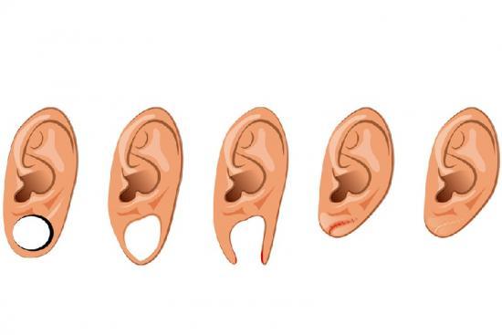 Réparation de trou de boucle d'oreille  0 Turquie