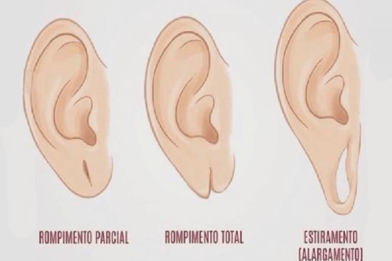 Réparation de trou de boucle d'oreille  1 Turquie