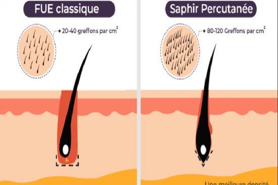 Implant Capillaire 2 Turquie