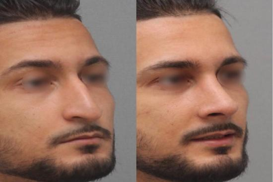 Photos: Before / After