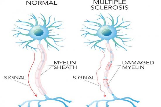 signs,multiple sclerosis treatment,treatment,diagnosis,signs of ms in women,women,multiple sclerosis treatment in turkey,istanbul,clinic,hospital,price,doctor,neurologist