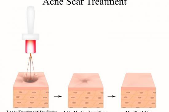 Traitement de l'acné au laser 0 Turquie