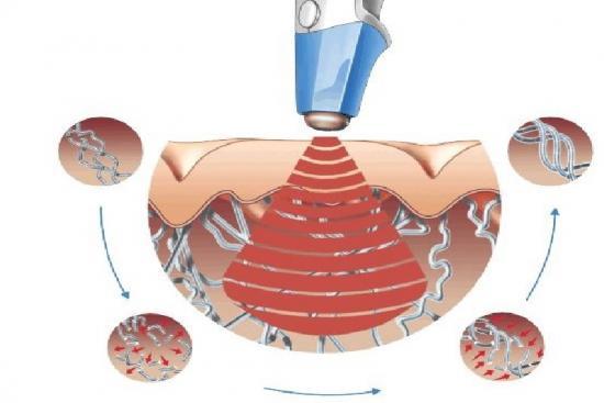 Traitement de l'acné au laser 1 Turquie
