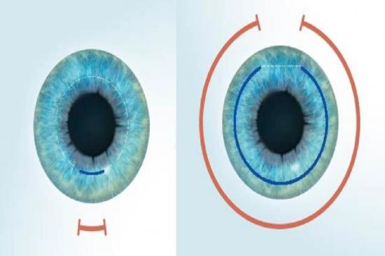 Лечение глаукомы 2 Турция