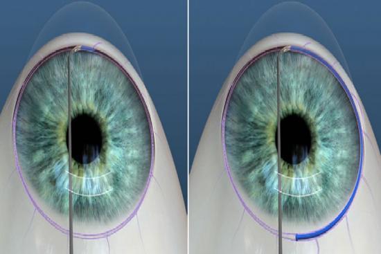 Лечение глаукомы 1 Турция