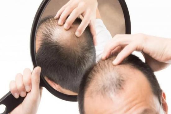 Hormonal hair loss treatment 0 Turkey