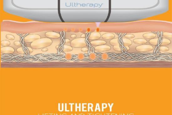 Ulthérapie 0 Turquie