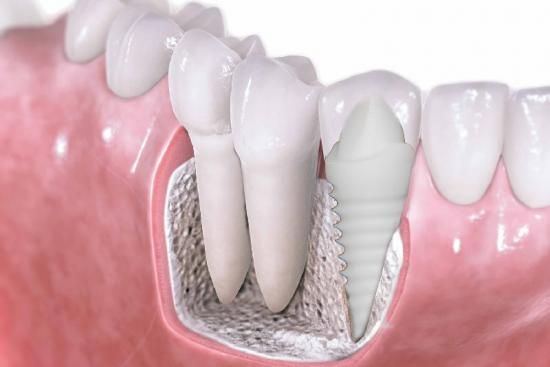 price,reviews,zirconia veneers reviews,reviews,Zirconium Crowns,Crowns,laminate veneers,laminate,porcelain veneers in turkey,porcelain,dentist,orthodontist,turkey,clinic,hospital